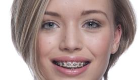 Adult Orthodontic Braces