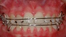 Girl top and bottom retainer