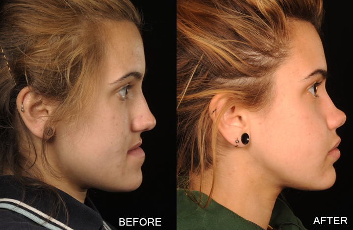 British Orthodontic Society Gt Public Amp Patients Gt Your Jaw