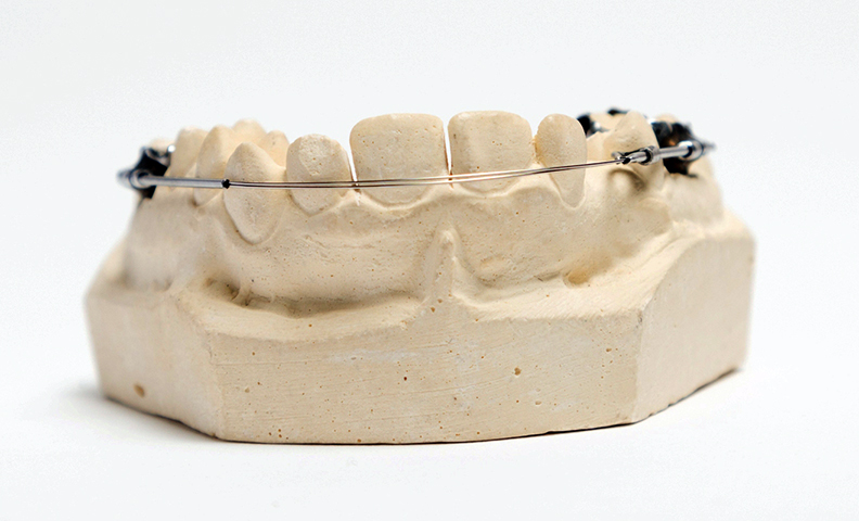 Stupendous British Orthodontic Society Museum And Archive Collection Wiring 101 Orsalhahutechinfo